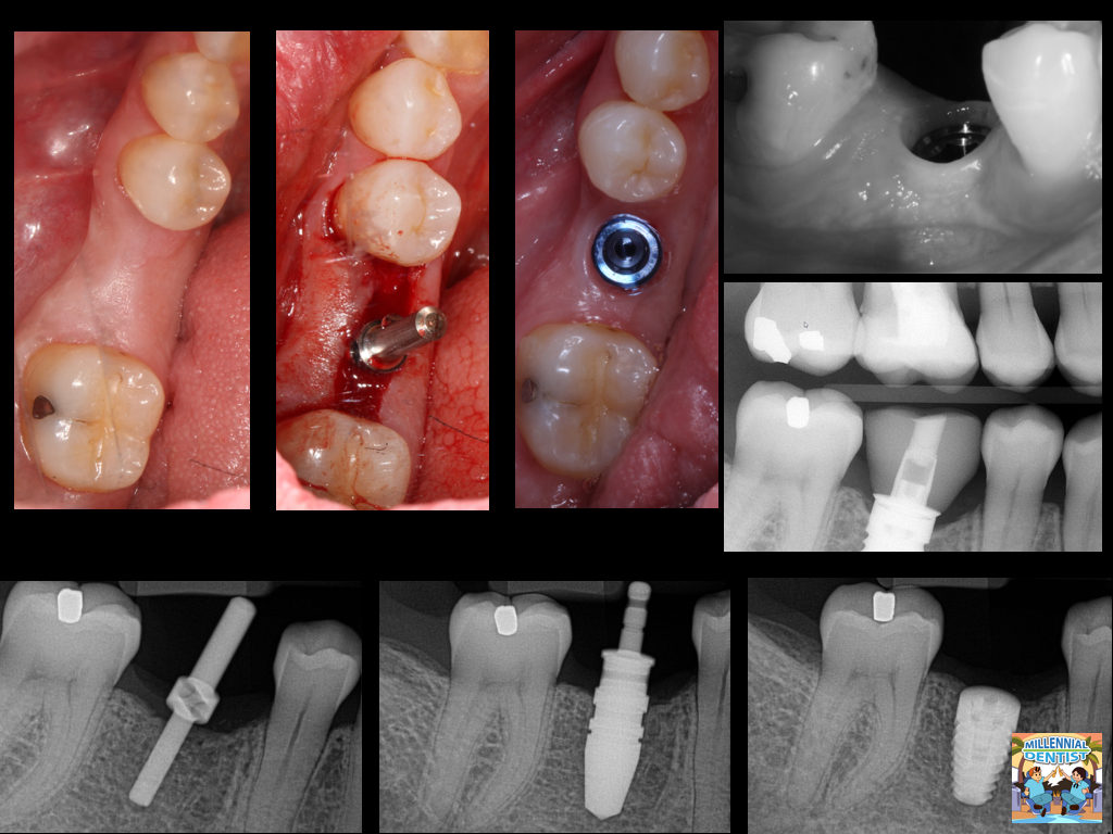First Implant